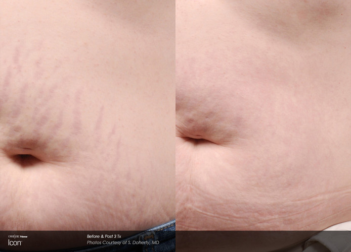 Before And After Laser Stretch Mark Remo