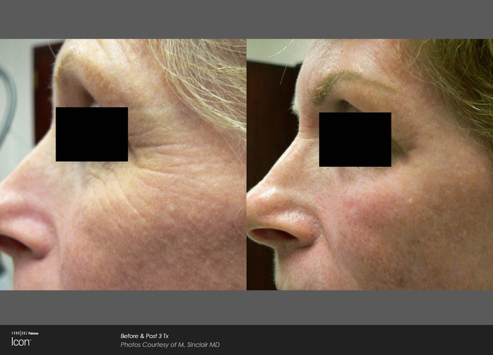 Before And After Laser Skin Renewal - Tr