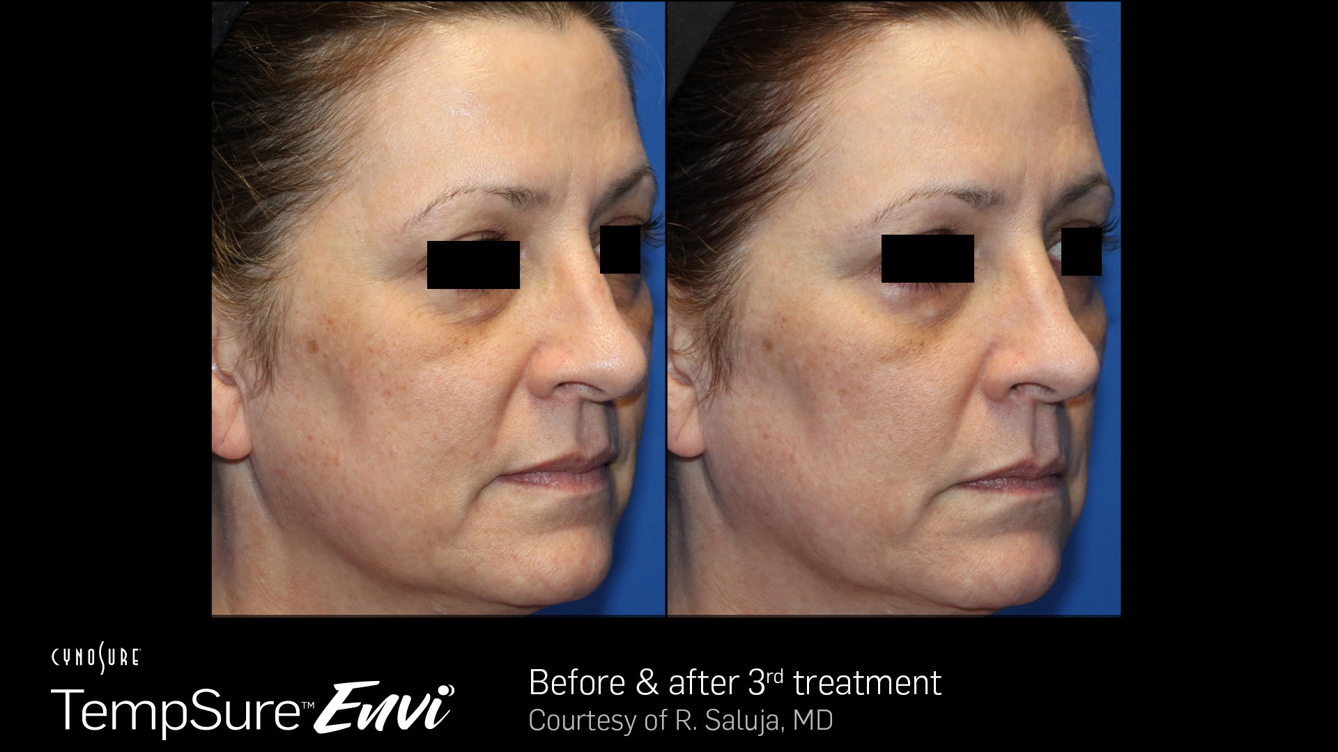 Before And After TempSure Envi Skin Tigh