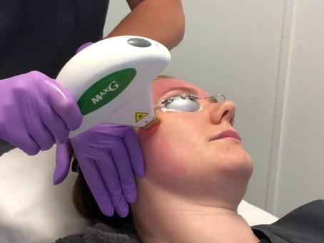 What is a Intense Pulsed Light (IPL) treatment?
