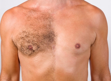 Laser Hair Removal for Men in Las Vegas