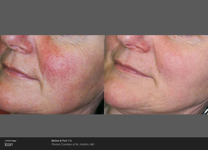 Before And After Laser Skin Revitalizati