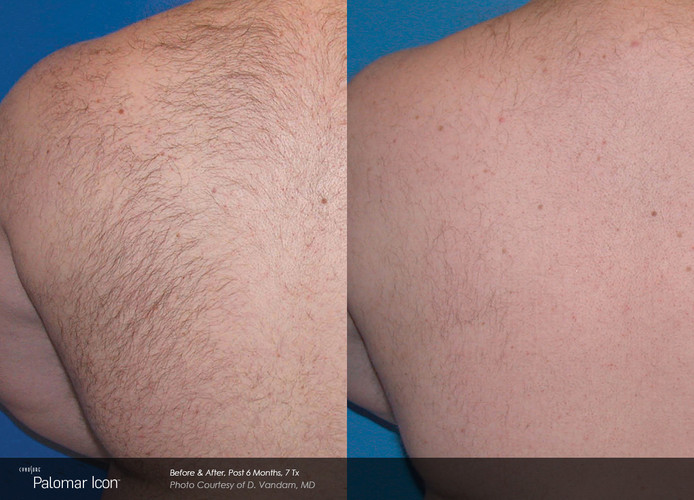 Before And After Laser Hair Removal - Tr