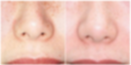 Before And After Max G IPL Photofacial a