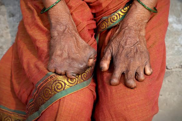 leprosy india women