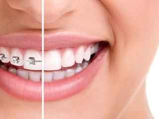 Ortodoncia:  todo lo que el paciente debe saber a cerca del tratamiento