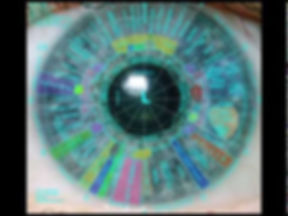 Iridology at the Gainesville Holistic Health Center