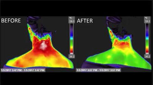 Energy Healing measured by thermography