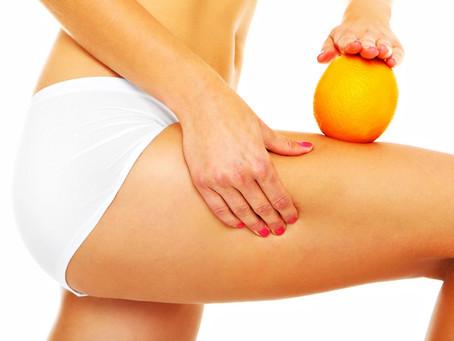 Mitos y Verdades de la Celulitis
