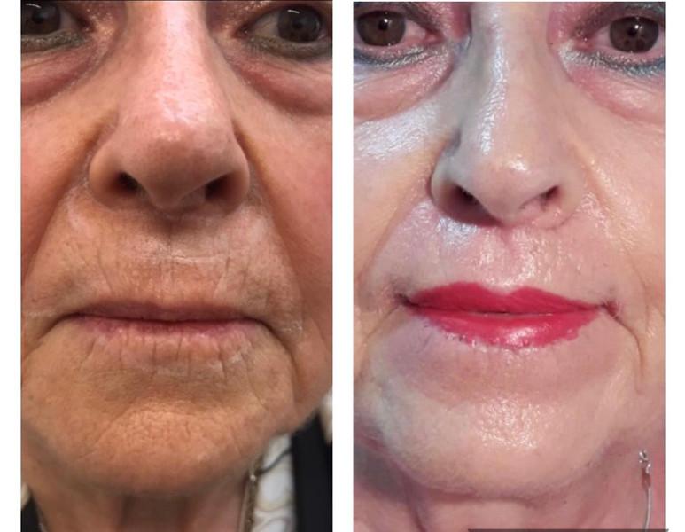 cirugía embellecimiento labial