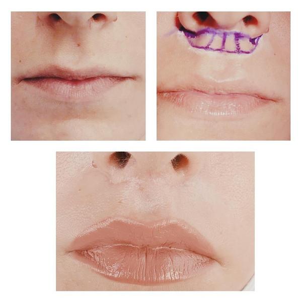 lip lift modificado