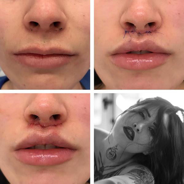 lip lift superior modificado