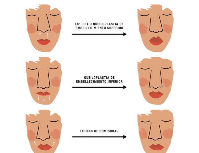 distintas cirugías de embellecimiento labiales