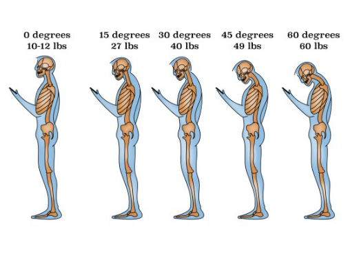 Natural alignment of the neck balances our heads at a weight of 10-12 pounds.  Misalignment, often the result of repetitive use, can increase the load by up to four times.