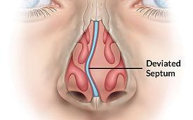 Deviated-Septum-pic.jpg