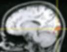 neuropsychologue luxembourg, neuropsychologist luxembourg