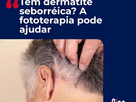 Tem Dermatite Seborréica? A Fototerapia pode ajudar!