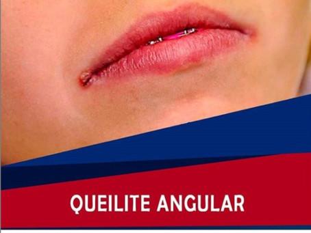 Queilite Angular