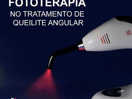 Fototerapia no tratamento de Queilite Angular