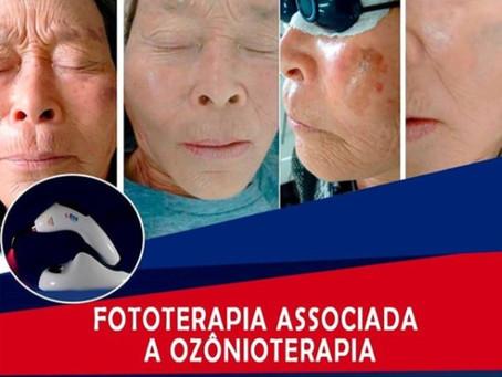 Benefícios da aplicação de Fototerapia associado a Ozônioterapia