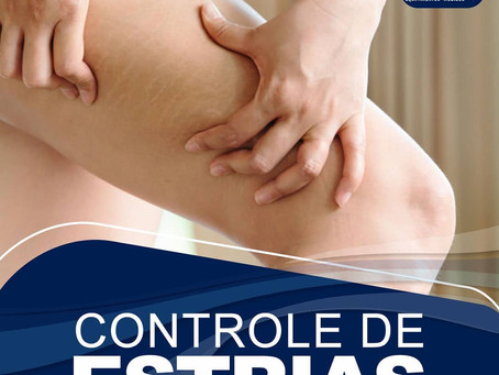 Controle de estrias com Bios Therapy II e Bios Therapy X
