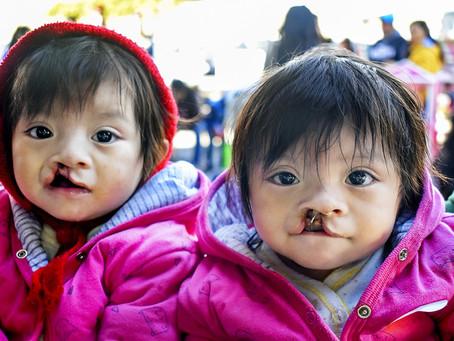 墨西哥的twins: Daniela & Denise