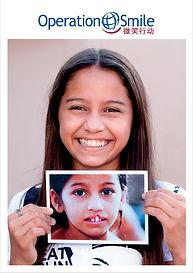 微笑行動 Operation Smile.jpg