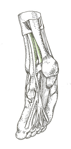 TrP Level II Flexor digitorum longus . Flexor halucis longus tendon . 2of2 Foot _F