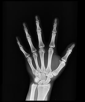 Xray image showing the joints of the hand