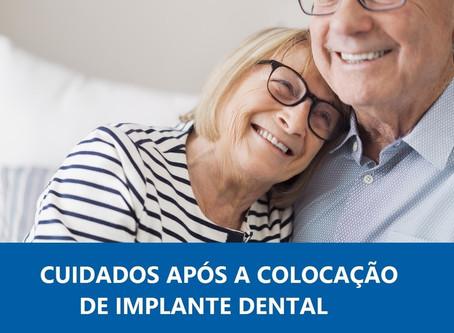 Cuidados após a colocação do Implante Dental