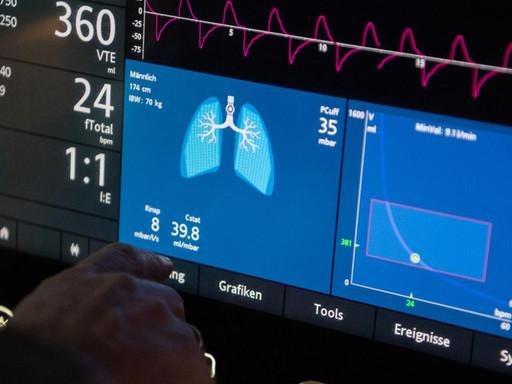 Ventilators in the Time of COVID-19