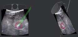 Aim with needle behind slice_edited.jpg