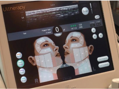 Get a Lift with exciting new treatment called Ultherapy