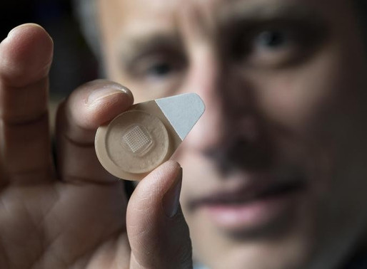 Microneedle patches designed to deliver long-acting contraceptive hormone