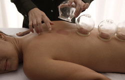 CUPPING THERAPY (INCLUDES CHINESE HE