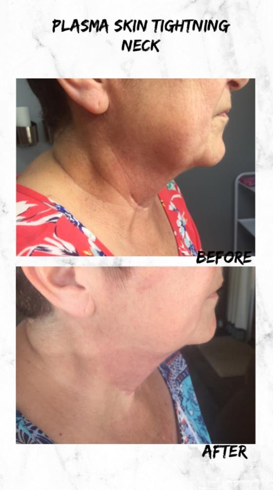 Allure Beauty & Spa Benoni Johannesburg South Africa_Plasma Skin Tightening