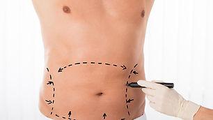 Abdominoplastia-2.jpg