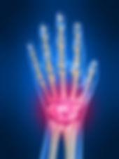 Καρπός - Δάκτυλα | Φυσικοθεραπεία | P.H.C. Κέντρο Φυσικοθεραπείας