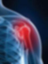 Ώμος | Φυσικοθεραπεία | P.H.C. Κέντρο Φυσικοθεραπείας