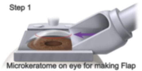 Microkeratome on eye making a flap