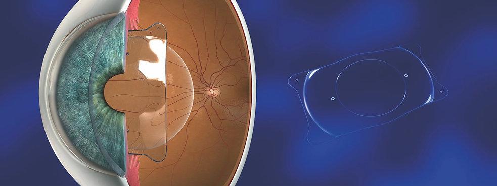 ICL surgery at Singla Eye Hospital, Kotkapura, Punjab