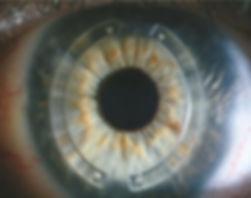 Intacs in cornea