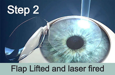 Lasik fired after lifting flap