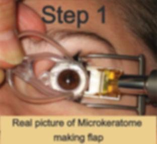 Moria microkeratome making flap at Singla Eye hospital and Laser Vision Centre, kotkapura, Punjab