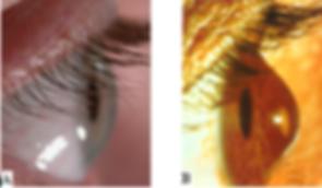 Keratoconus treatment at Singla Eye Hospital and Laser Vision Center, Kotkapura, Punjab