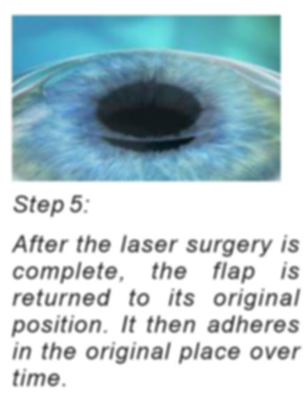 bladeless femto lasik at singla eye hospital and laser vision centre, kotkapura, Punjab