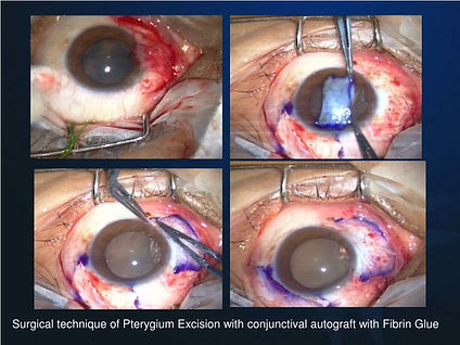 Pterygium Surgery with conjunctival autograft with glue at Singla Eye Hospital, Kotkapura, Punjab