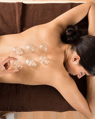 Cupping%20Therapy%20Diploma%20Course-%20