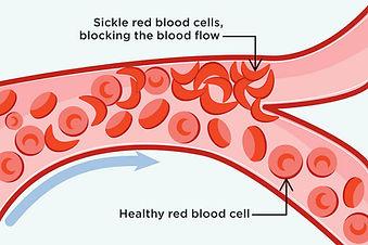 sickled cells.jpg