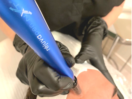 How to Find the Best Microneedling Device
